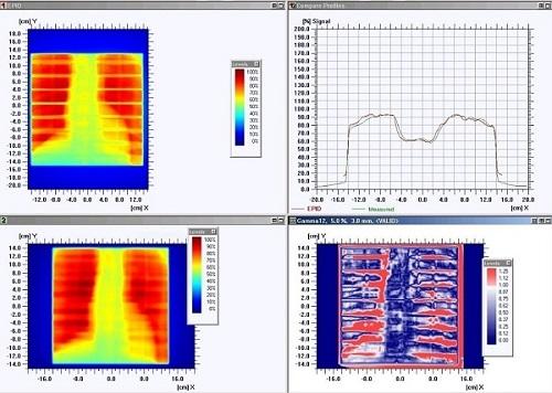 Figura-1. Tórax 20x20cm. Arriba izquierda, dosis portal, abajo izquierda, dosis calculada. Abajo derecha, resultado índice gamma.