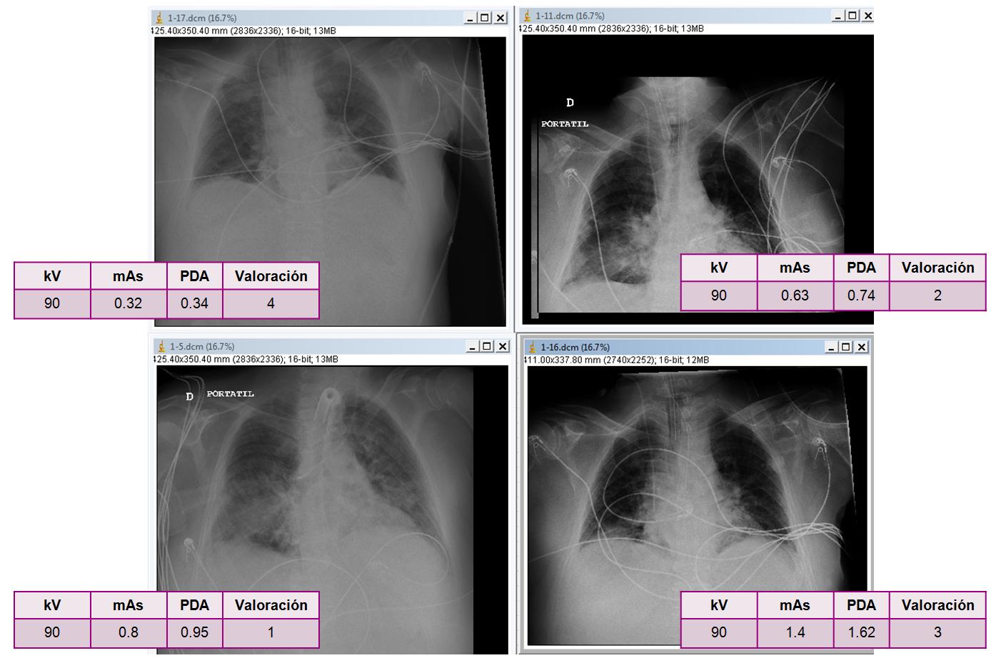 Imágenes de un mismo paciente con valoración de calidad de imagen siendo 1 la máxima puntuación y cuatro la mínima