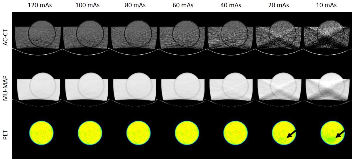 Series de imágenes obtenidas a partir de los CT de 80 kV.