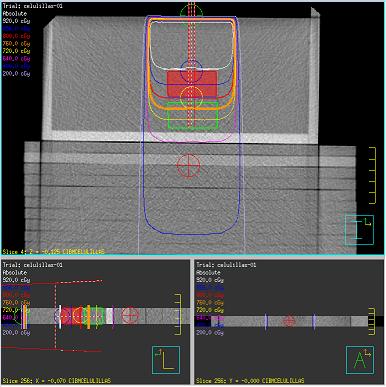 Determinación de UM/cGy y tamaño de campo