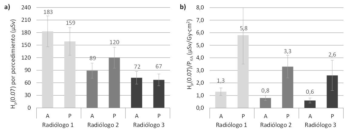 Comparación de la dosis ocupacional en cristalino en procedimientos pediátricos (P) y adultos (A).