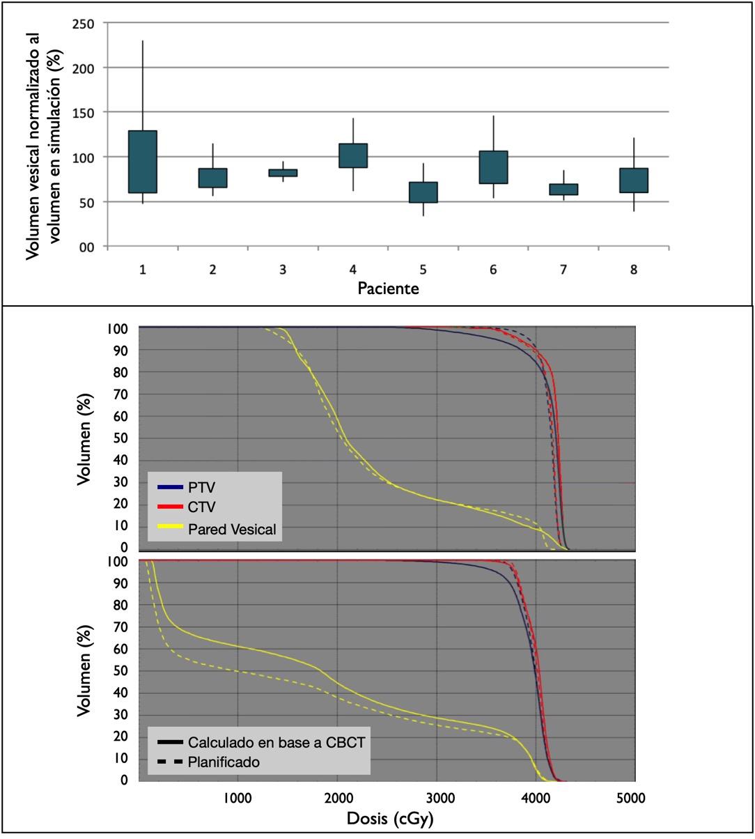 Panel superior: variación del volumen vesical durante el tratamiento. Las zonas sombreadas corresponden al promedio ± desviación estándar y las líneas muestran el rango completo. Panel inferior: Histograma dosis-volumen para dos pacientes. En línea discontinua las curvas correspondientes a la planificación; en línea continua las curvas estimadas a partir de los CBCT. Se muestran sólo PTV (azul), CTV (rojo) y pared vesical (amarillo)