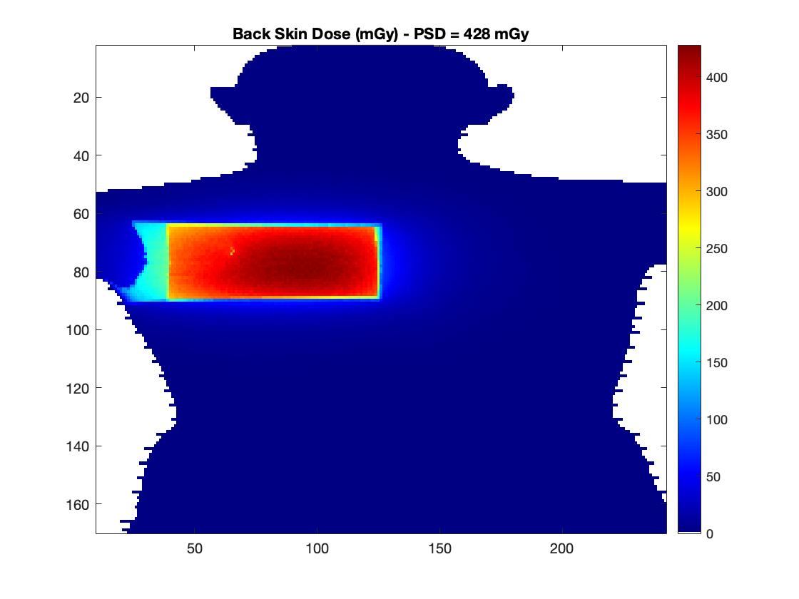 Distribución de la dosis en piel de la espalda del maniquí Alderson Rando.
