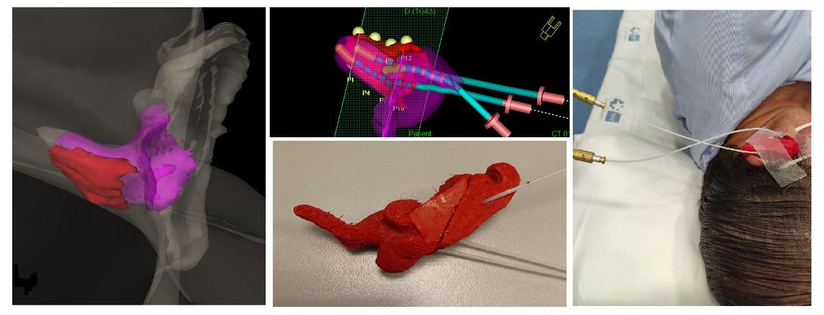 Molde 3D en planificador, con fuentes y en paciente