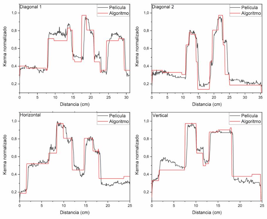 Valores de los perfiles trazados sobre las imágenes normalizadas de la película radiocrómica escaneada (negro) y de la distribución de kerma en aire generada por el algoritmo (rojo).