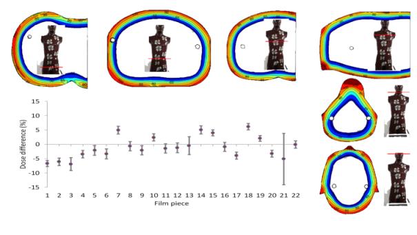 Diferencia relativa de la dosis piel medida respecto a la dosis prescripta y distribución axial de dosis.