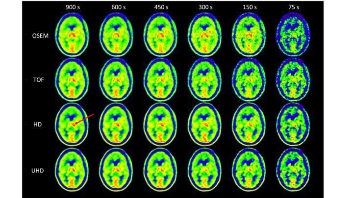 Figura1. Variación de la calidad de la imagen en función del tiempo de adquisición, para los 4 algoritmos de reconstrucción. La flecha indica la captación tumoral.