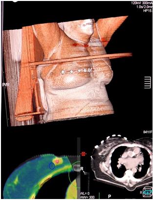 Imágenes de la simulación de SBRT mama