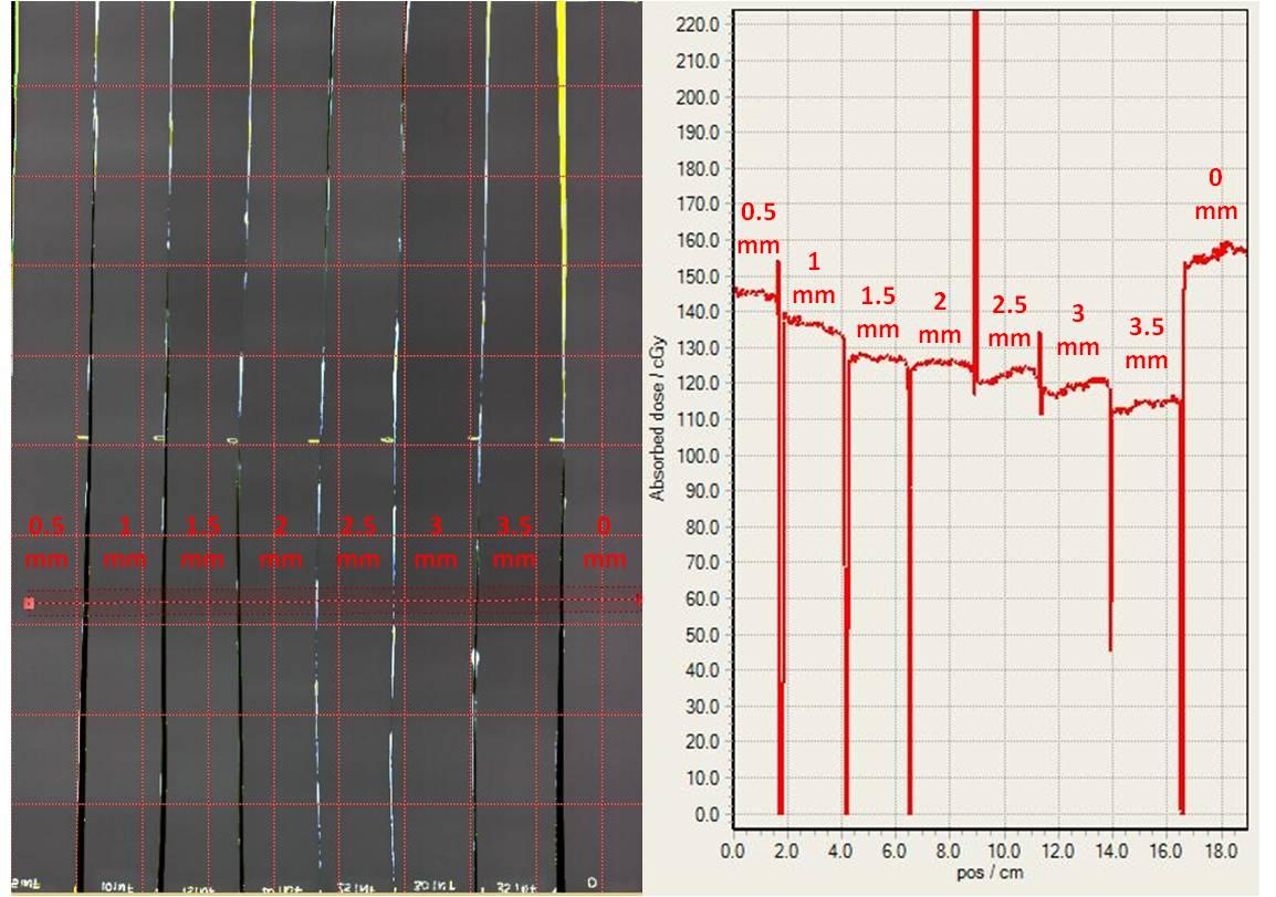 Evaluación de la dosimetría en la zona de gradiente mediante placas radiocrómicas.