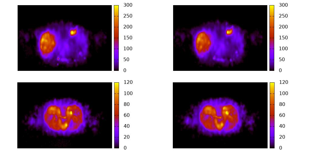 Distribución de dosis en eV/g por historia simulada con PenRed (izquierda) y GATE (derecha) a partir de una imagen DICOM.